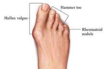 Best options for great toe joint artrites